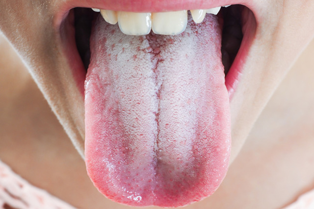 Цвет языка при коронавирусе